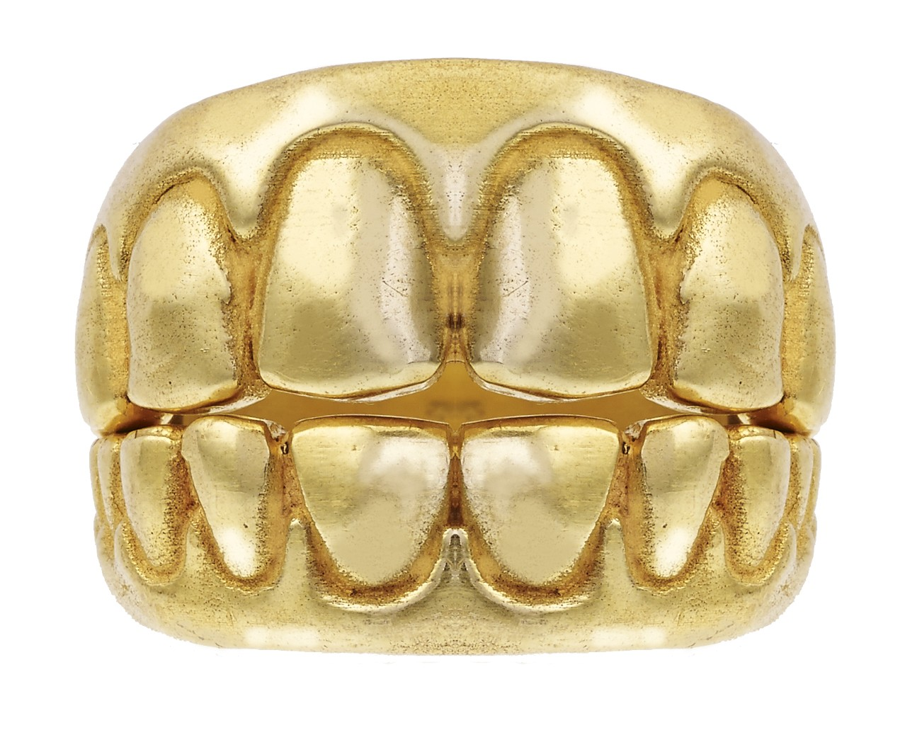 Dentists require a lot of cash for gold teeth