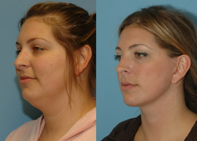 What Does a Mini Neck Lift Cost?