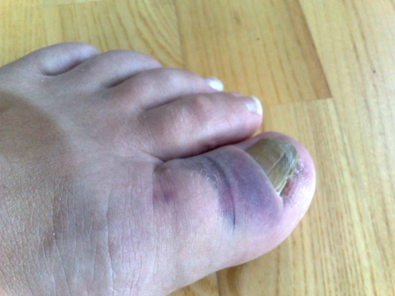 Causes and Treatment for Big Toe Pain